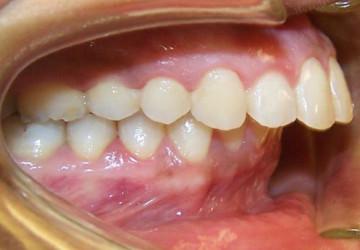 Bạn đã biết nguyên nhân gây răng vẩu và cách khắc phục chưa?