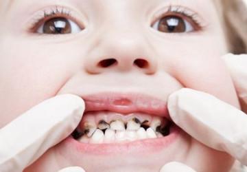 Báo động tình trạng viêm tủy răng ở trẻ em hiện nay