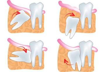 Bị mọc răng khôn phải làm sao để tránh những biến chứng có thể xảy ra