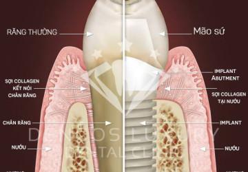 Cắm implant bao nhiêu tiền và có hiệu quả như thế nào?