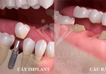 Đặt implant là gì? – Tổng quan kiến thức liên quan tới đặt implant