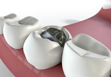 Khi nào nên hàn răng để có kết quả tốt? Tin 24h