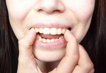 Làm thế nào để răng hết vẩu? Hãy lắng nghe chuyên gia trả lời