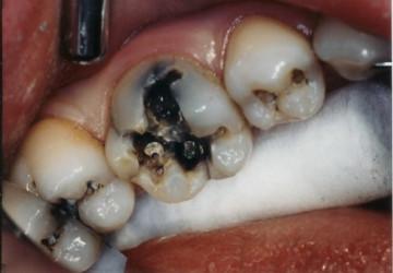 Nguyên nhân gây bệnh viêm tủy răng và cách điều trị bệnh!