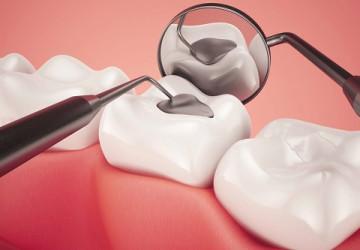 Trám răng là gì? [Thông tin nha khoa có thể bạn không biết]
