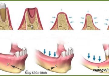 Những điều chuyên gia nói với bạn về tiêu xương răng là gì?