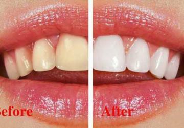 [TƯ VẤN] Cách nhuộm răng trắng nhanh nhất, tác dụng nhất