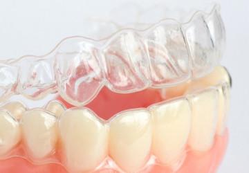 Niềng răng tháo lắp có hiệu quả không? Bs nha khoa giải đáp