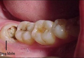 Răng khôn là gì? Những nguyên nhân gây đau đớn khi mọc răng.