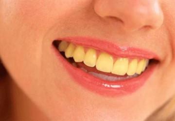 Giải đáp thắc mắc- Vì sao răng bị vàng?