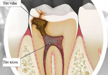 Viêm tủy răng là gì và những điều nhất định phải biết