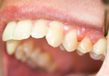 Cảnh báo bệnh nướu răng ai cũng dễ có thể gặp phải