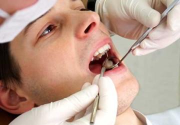 Lấy cao răng để làm gì và có quan trọng không?