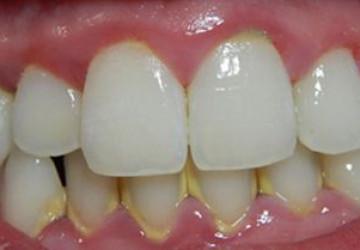 Top 5 cách lấy cao răng tại nhà hiệu quả mà không tốn một xu