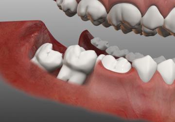 Những khuyến cáo khi nhổ răng số 8 mà ai cũng cần biết