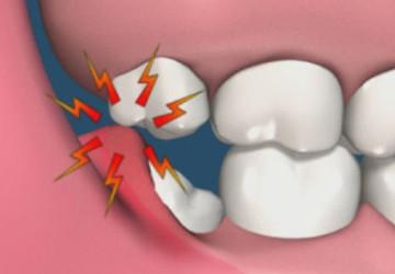 Mọc răng khôn có ý nghĩa gì không? Và có nên nhổ răng khôn?