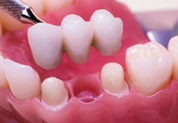 Làm cầu răng như thế nào? – Chi tiết kĩ thuật & các bước thực hiện