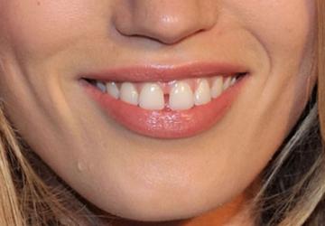 Răng cửa bị thưa phải làm sao để khắc phục hiệu quả, nhanh chóng?