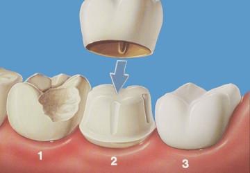 Bọc mão răng sứ là gì và quy trình bọc mão răng sứ như thế nào?
