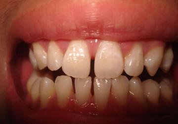 Răng thưa và cách khắc phục nhanh chóng chỉ 2 lần hẹn