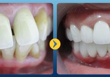 Răng hô có xấu không & cách khắc phục chỉ trong 2 lần hẹn