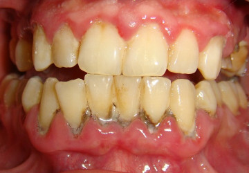 [Cẩm nang sức khỏe] Lấy cao răng có ảnh hưởng gì không?