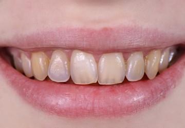 Cách phòng ngừa và điều trị mặt răng mòn