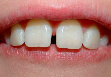 Những kiểu răng thưa hay gặp nhất