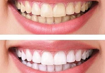 So sánh 2 phương pháp tẩy trắng răng và lấy cao răng