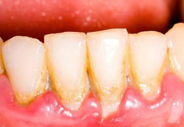Chân răng có mủ và triệu chứng của bệnh gì?