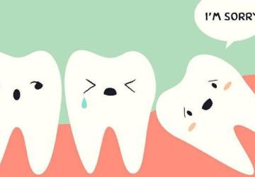 Răng khôn và cách điều trị