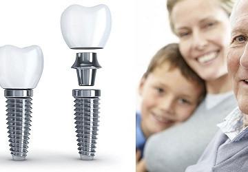 Người già có thể thực hiện cấy ghép răng Implant?