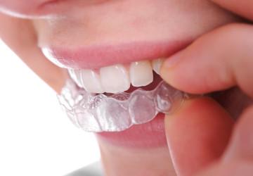 Quy trình niềng răng không mắc cài gồm những bước nào?