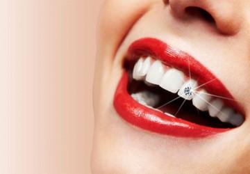 Có nên làm răng đính kim cương? – Lời khuyên từ nha sĩ